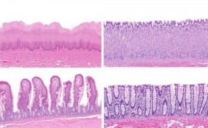 Intestinal Epithelial Cells