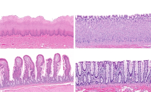 Growing Intestinal Epithelial Cells May Lead to Personalized IBD Therapies