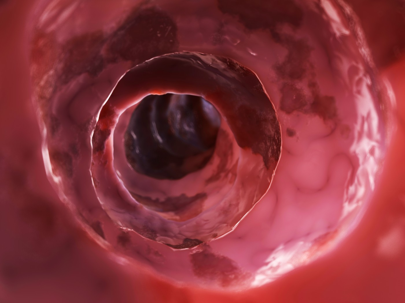 Researchers Find That Chromoendoscopy for IBD Surveillance Fails to Increase Dysplasia Detection