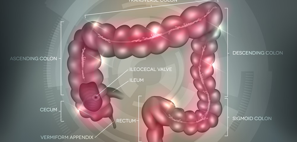 IBD Disorders Found to Be Complex and Distinguished by Genetic Variations