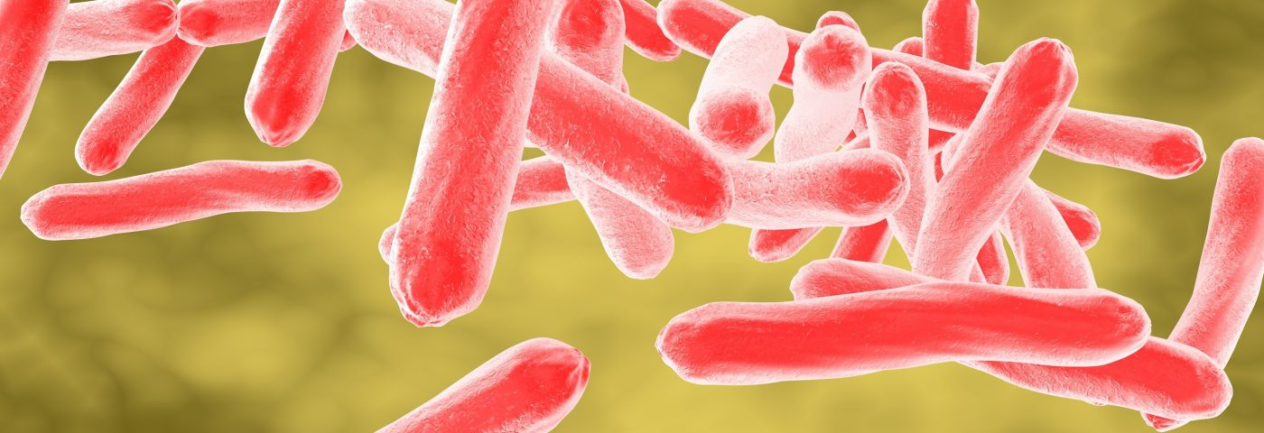 Healthcare Workers with IBD at Higher Risk of Tuberculosis but Not Other Infections, Study Suggests