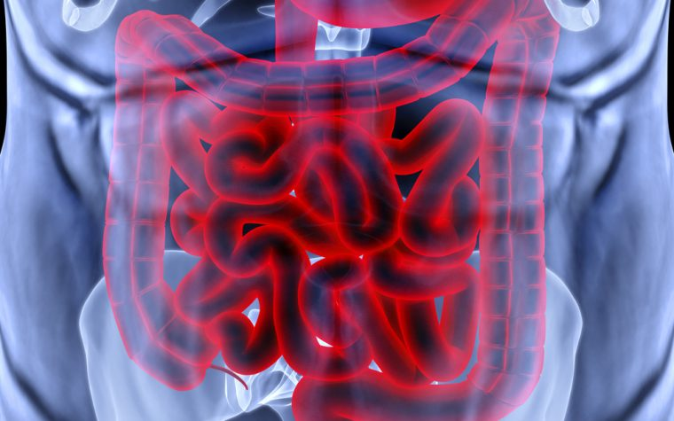 $9.7 million NIH grant to study Crohn's disease