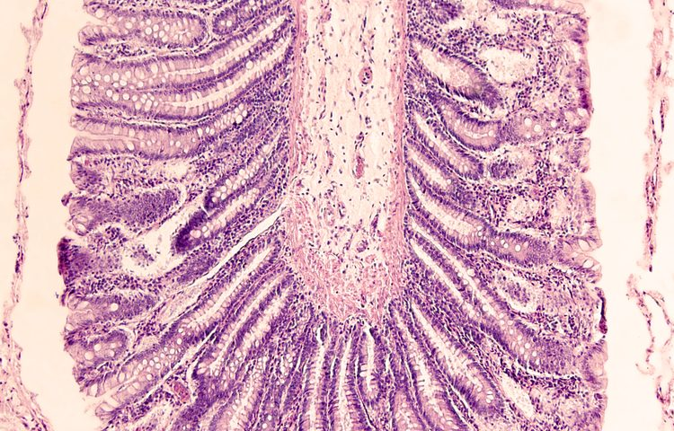Protein Found Vital for Controlling Inflammation in Crohn's Disease; Possible Therapeutic Target for IBD
