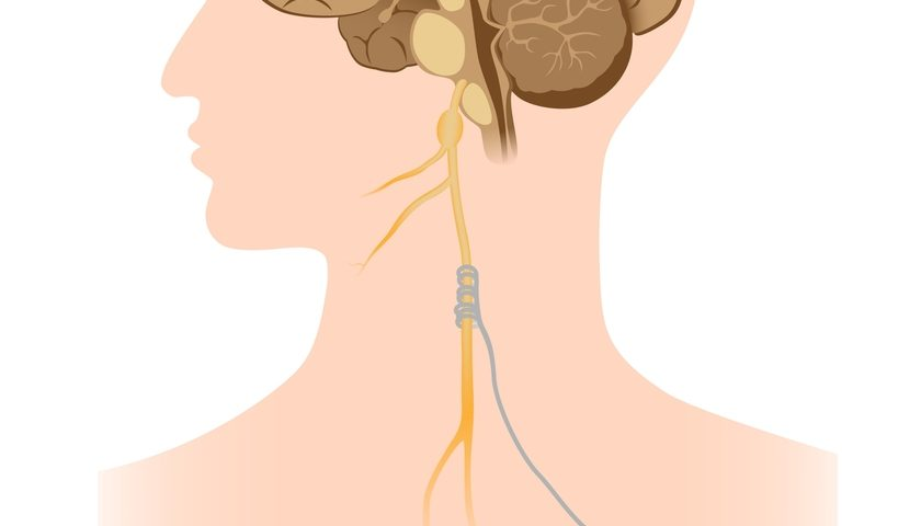 Electrically Stimulating Vagus Nerve May Help Control Inflammation in IBD