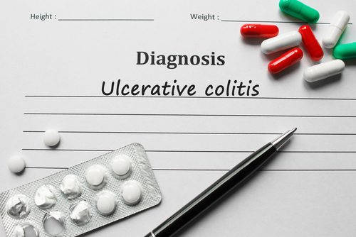 TopiVert Begins Phase 1 Study of Oral TOP1288 as Colitis Treatment
