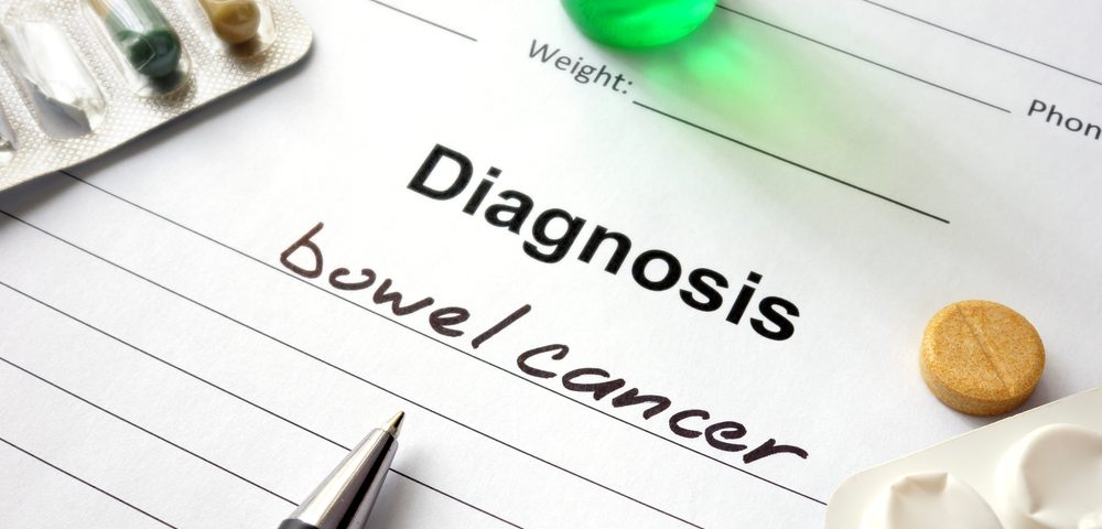 IBD, Other Illnesses Shown to Delay Bowel Cancer Diagnosis