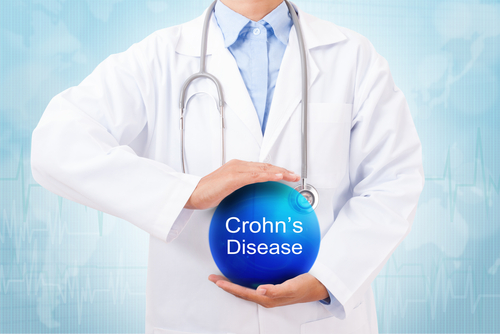 TiGenix Potential Therapy for Crohn's-related Perianal Fistulas Gets FDA Approval