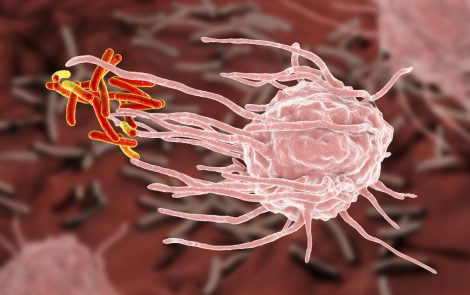Byproduct of Cholesterol Metabolism May Activate Gut Immune Cells to Cause IBD, Study Says