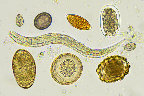 Protein Secreted by Parasitic Worms May Treat IBD by Easing Gut Inflammation, Study Reports