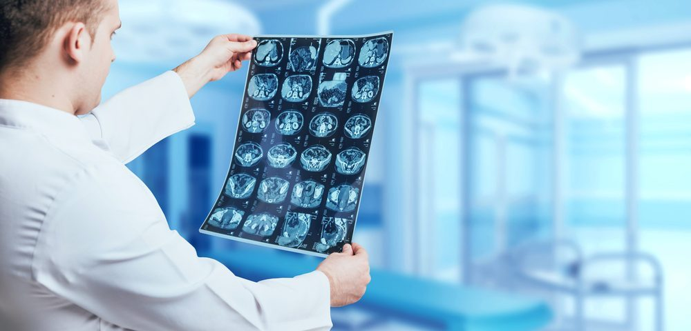 The Different Radiology Scans for Crohn's Disease and IBD
