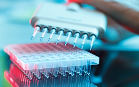 Specific Antibodies May Be Marker of Ulcerative Colitis in Young Patients, Study Suggests