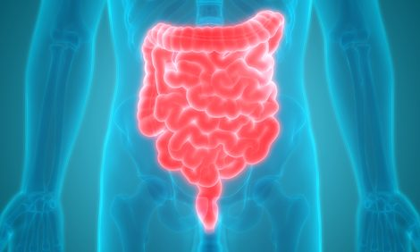 Editing Gut Bacteria Reduces Colorectal Cancer in Mice with Colitis