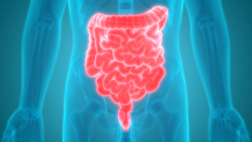 Ozanimod Lessens Inflammation in Crohn's, Early Phase 2 Trial Data Show