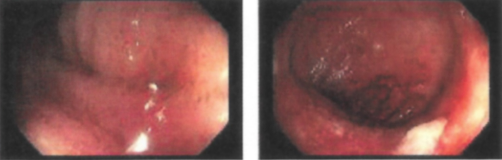 Erythema, granularity, and friability in the terminal ilium and right colon
