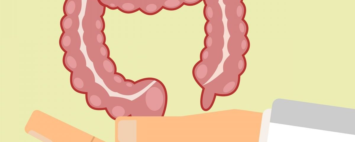 Understanding My Colonoscopy From the Inside Out