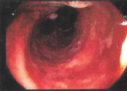 Left colon with ulcers